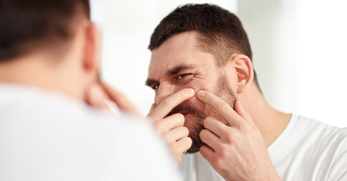 acne clearance